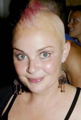 İngiliz sunucu Gail Porter bir gecede saçlarını kaybetti.