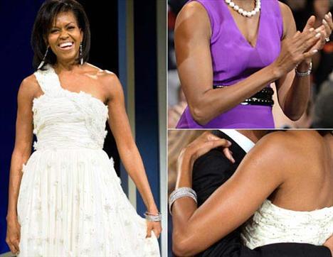 ABD'nin first lady'si Michelle Obama'nın kolları, pürüzsüzlüğü ve kaslarıyla özellikle kadınların dikkatini çekiyor. Michelle Obama'nın girdiği ortamın ciddiyetini önemsemeden kolsuz elbiseler giymesi eleştirilere neden olsada, kadınların yeni ikonu olma halini her geçen gün biraz daha güçlendiriyor