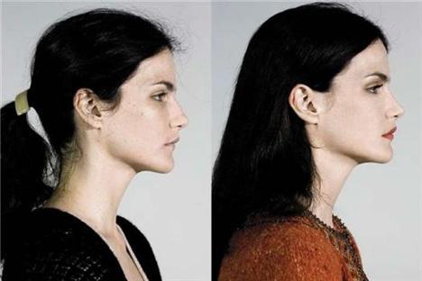 Estetik ameliyatlar ve moda birleşince - 15