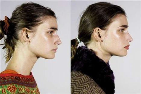 Estetik ameliyatlar ve moda birleşince - 29