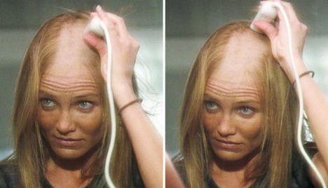 Saçlarını kazıttı! - 1
