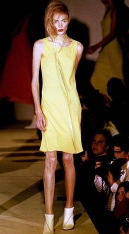 Ekim 1995... Joddie Kidd'in bu sıfır beden fotoğrafı herkesi öyle şaşırtmıştı ki.