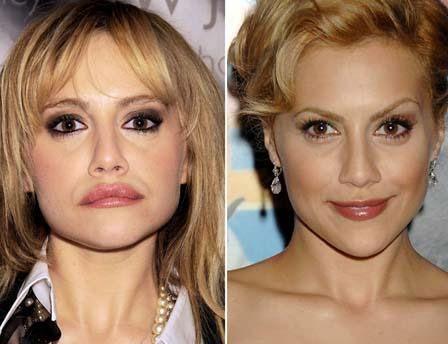 Brittany Murphy'nin eski ve yeni hali. Sağdaki karede genç yıldız dudaklarına estetik operasyon yaptırmadan önce. Soldakinde ise operasyondan sonra.