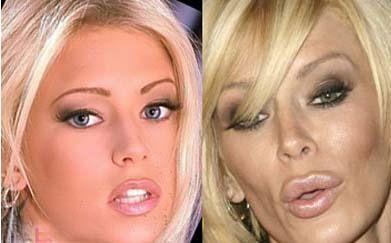 Jenna Jameson, bir zamanlar porno sektörünün en güzel yıldızıydı. Hatta Madame Tussaut Müzesi'nde mumyası olan tek porno yıldızı. Ama ard arda yaptırdığı estetik operasyonlara bir de aşırı zayıflık eklenince böyle görünmeye başladı.