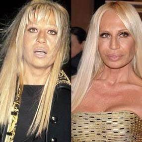 Estetik kurbanı denilince akla ilk gelen ünlülerden biri de Donatella Versace.