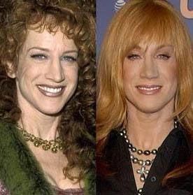 Kathy Griffin, 1997'de soldaki gibi görünüyordu. 2007'de ise sağ karedeki gibi.