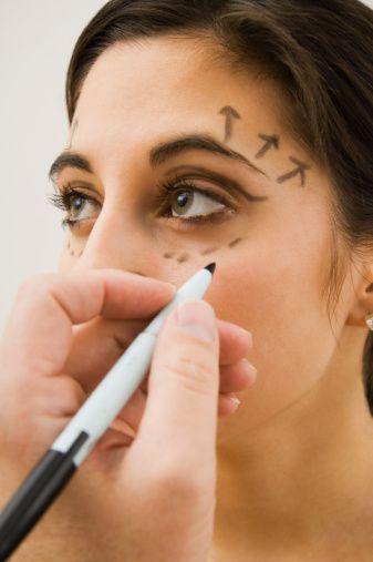 GÖZ KAPAĞI ESTETİĞİ  Alt ve üst göz kapağı estetiği gençliğin yüzdeki yansımasıdır. Orta yaşlarda, göz kapaklarında torbalanma ve sarkmalar görülebilir. Genetik olarak, yaşın ilerlemesi  ve güneş, yer çekiminin etkisi ile  bu şikayetler daha erken yaşlarda da görülebilir. Göz kapaklarında oluşan bu deformasyonlar kişiye yorgun-mutsuz ve ileri yaştaymış gibi yüz ifadesi verebilir.  Üst ve alt göz kapaklarına yapılan estetik operasyona 'bleforoplasti' denir. Bleforoplasti işleminde; sarkmaları meydana getiren göz kapaklarındaki cilt fazlalıkları çıkarılır. Göz kapaklarında oluşan yağ torbaları onarılır. Üst göz kapağı estetiğine daha erken yaşlarda ihtiyaç duyulabilir ve alt göz kapağına dokunulmadan sadece üst göz kapağı estetiği yapılır. Tüm işlemlerden sonra gözler kapatılmaz ve hastanın görmesi etkilenmez. Erkek ya da bayan olsun, ortalama 4 gün sonra da göz kapaklarındaki estetik dikişler alınır. Kişi daha genç ve canlı görünüme kavuşur.