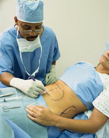 KARIN GERME (ABDOMİNOPLASTİ)  Doğum sonraları başta olmak üzere kilo vermelerden sonra karın bölgesinde yağlanma ve karın cildinde sarkmalar görülür. Göbek deliği açılmış ve göbeğin altında cilt çatlakları da oluşmuştur. Karın bölgesindeki yağlar çoğu kez bel bölgesine kadar taşarak bel oyuğunu yok eder ve mide üzerinde de bombelik yapar. Tüm bu deformasyonlar bir operasyonla giderilebilir. Abdominoplastide hedef karın kaslarındaki yırtığı onarmak, cilt ve yağ fazlalığını almak, göbek altındaki çatlakları gidermek, yeni estetik görünümlü göbek deliği, mide bölgesi ve bel oyuğunu oluşturmaktır.Operasyon sonrası  iyileşme süresi on gündür. Fazla kilo alıp-verilmediği, tekrar hamile kalınmadığı sürece yapılan işlem kalıcıdır.  MİNİ  KARIN GERME (MİNİABDOMİNOPLASTİ)  Göbek deliğinin altında yağlanma ve cilt sarkaması olup, diğer bölgelerinde deformasyon olmayan kişilere yapılır. Sadece göbek altındaki cilt ve yağ fazlalığı alınarak estetik görünüm sağlanır. İyileşme süresi ortalama 5-7 günde tamamlanır. Kiloya dikkat edildiği taktirde işlem kalıcıdır.