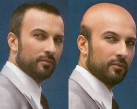 Tarkan  Türkiye'nin pop starı Tarkan, dönem dönem imajını yenileyerek hayranlarının karşısına çıkıyor.Bir gün saçları dökülüp kel kalsa bile sorun yok galiba.Kellik bile karizmasından hiçbir şey götürmemiş.