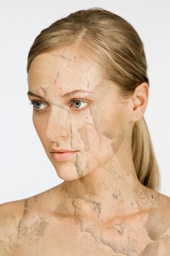 3. KIZ PROBLEMİ  Cildi zorlamak Hafif bir aşınma pul pul olmuş cansız döküntüleri, gözenekleri tıkayan ölü hücreleri temizler ve alttaki yumuşak, taze deriyi ortaya çıkarır. Ancak bazı insanlar yüz bakımını biraz ileriye götürdüğünden yüzlerinde isilik, bakteriyel enfeksiyon ve yara gibi problemler ortaya çıkar. Haftada birden fazla ovalamak cildi hassaslaştırıp tahriş eder. Ayrıca akneleri de kışkırtır.