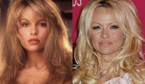Hollywood'un ve sahnelerin süper güzel kadınları ve yakışıklı erkekleri yıllara yenik düştü.  PAMELA ANDERSON
