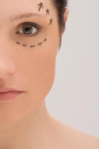 5. Estetik göz kapağı Göz kapaklarındaki deri fazlasını, kırışıklıkları ve torbalanmaları gideren göz kapağı ameliyatları için de plastik cerrahlara sıkça başvuruluyor.