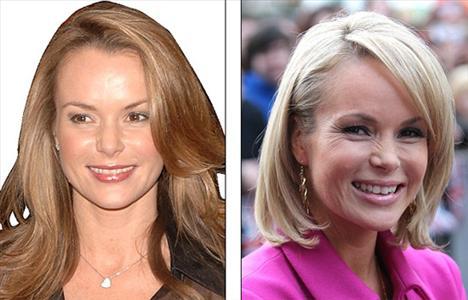 """Amanda Holden'in sağda 2009 solda 2010 yılındaki fotoğrafı.   Holden 8-9 aydır botoks kullanmadığını söyledi ve ekledi """"Botoks kullanan herkes bana aynı görünüyor""""."""