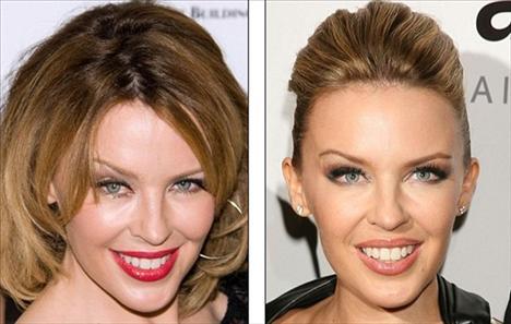 Kylie Minogue'un solda 2009, sağda 2010 yılındaki fotoğrafları.   Minogue botoks kullandığını ama artık yanına bile yanaşmayacağını söyledi.