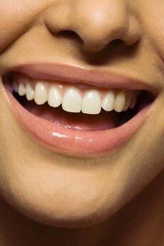 Beyazlatma işlemi ile bembeyaz dişlere sahip olabilirsiniz. İki çeşit uygulama bulunuyor.