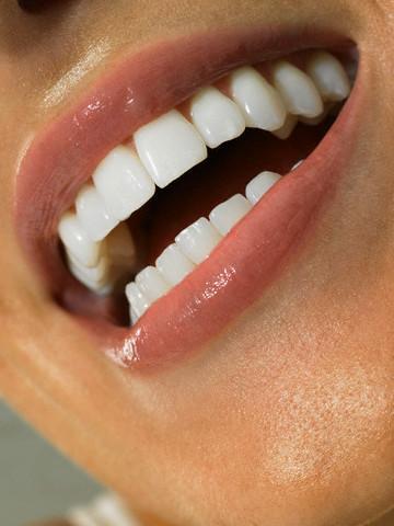Bleaching işleminde dişetlerini dikkatli bir şekilde korumak gerektiğini belirten Dr. Çağdaş Kışlaoğlu, kullanılan ilacın yoğunluğu ve kullanım sürelerinin doğru ayarlanmasının da önemli olduğunu vurguladı.  Dişlerin beyazlaması öncelikle başlangıç renkleri ile ilgilidir. Sarı tonlu dişler kolaylıkla 6–8 ton beyazlayabilirken, yeşil-gri tonundaki dişlerin beyazlaması daha zordur. Beyazlama miktarı kişiden kişiye değişmekle birlikte hekiminiz ilk seansta dişlerinizin ne kadar beyazlayabileceği hakkında yaklaşık bir bilgi verecektir.