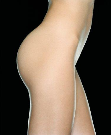 Calf Protezi (Diz Altı Protezi)  Diz üstü bölge ile diz altı bölge arasında çap olarak kalınlık farkı mevcut ise, her iki bacak arasında kalınlık ya da şekil farkı var ise veya bacaklar çarpık bir görünüme sahip ise yapılacak operasyon ile bu sıkıntılar giderilebilir. Op. Dr. Atilla Alp, dize kadar olan bacak bölgesinin eğriliklerinde ve aşırı derecede ince olması durumunda ise bacak içine yerleştirilen silikon protezlerle bacağın kalınlaştırılması ve eğrilik nedeniyle ortaya çıkan boşluğun giderilmesinin mümkün olduğunu belirtiyor. Ameliyat genel veya bölgesel anestezi ile yapılabiliyor.