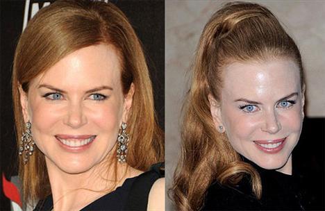 """İngiliz Daily Mail gazetesi, botoks yaptırmayı """"bırakan"""" ünlülerin eski ve yeni fotoğraflarını yayımladı. Gazete, botoksa dair itiraflarına da yer verdiği ünlülerin halen botoksa devam edip etmediği konusundaki yorumu ise okura bıraktı. Onlara inanmalı mıyız? Karar sizin... 43 yaşındaki Oscar ödüllü aktris Nicole Kidman geçen hafta bir Alman dergisine verdiği mülakatta botoks yaptırdığını itiraf etmiş ama sonuçlarından memnun kalmadığı için botokstan vazgeçtiğini söylemişti."""