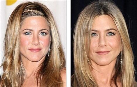 Jennifer Aniston Soldaki fotoğraf 2009'da çekilmiş, sağdaki 2010. 41 yaşındaki ünlü aktris Jennifer Aniston da 2009'da bir kez botoks kullandığını itiraf etmiş ama bunu iyi bulmadığını, kadınları daha yaşlı gösterdiğini ifade etmişti.