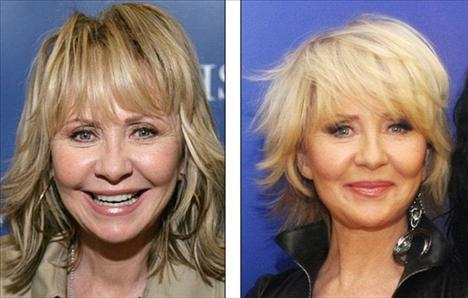 """Solda Lulu'nun 2010 yılındaki fotoğrafı, sağda ise yıl 2008. 62 yaşındaki şarkıcı """"Botoks kullandım ve ilk başlarda çok beğendim. Ancak hızla etkisini kaybediyor. Fazlası ise yüzünüzü hareket etmez hale getiriyor. Yani sizi genç göstermiyor. Bu yüzden bıraktım"""" dedi."""