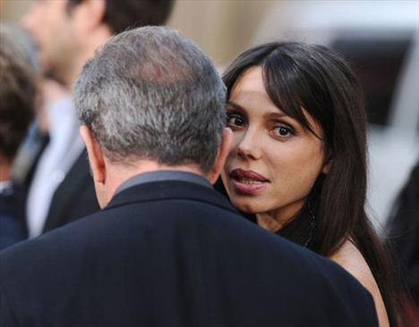 Gibson, Grigorieva'yı tokatladığını kabul etti ancak kadının internette dolaşan fotoğrafları, oyuncunun sevgilisinin dişlerini de kırdığını gösteriyor.
