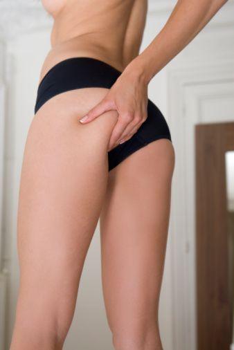 Çarpık Bacaklara Lipofilling Çözümü  Bazı kişilerde yapısal olarak alt bacakların özellikle iç kısımlarındaki kas dolgunluğunun normalden daha az olduğunu ve bu nedenle bacakların çarpık göründüğünü belirten Kışlaoğlu, böyle durumlarda lipofilling yöntemiyle bu bölgelere ekstra hacim kazandırılarak çarpık görünümün ortadan kaldırıldığını söyledi.   Yağ enjeksiyonuyla gerçekleştirilen lipofilling yönteminin lokal anesteziyle yapıldığını vurgulayan Kışlaoğlu, gerekli yağın liposuction yöntemiyle karın veya kalça bölgesinden alındığını belirtti.