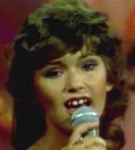 Bu genç şarkıcı bugün o kadar farklı görünüyor ki inanmak mümkün değil.