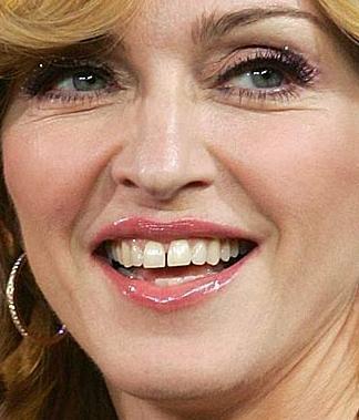 Fiziksel görüntüsünü korumak için elinden gelen her şeyi yapıyor Madonna.