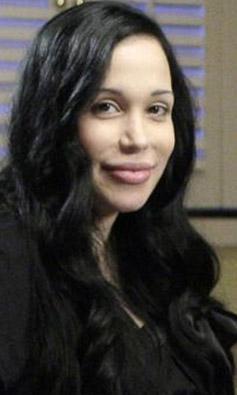 Nadya Suleman inkar ediyor ama Angelina Jolie'ye benzemek için estetik operasyon geçirdi.