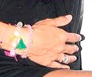 Bu damarlı eller, Türkiye'nin çok ünlü ve güzel bir kadınına ait. Üstelik henüz 30'lu yaşlarının başında...