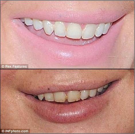 Henüz sadece 25 yaşında olan yıldızın dişleri, hızlı yaşam tarzına ayak uyduramamış görünüyor. Dişlerinin şimdiki hali, eski halinden çok çok uzakta....