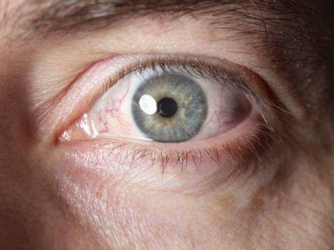 1. Sürekli  kırmızılık:   Kızarıklık ciddi  veya  önemsiz  bir  göz problemine bağlı  olabilir. Nasıl  ayırtedilebilir? Genellikle ciddi bir hastalıkta diğer belirtiler de mevcuttur. Ancak, başka bir semptom yoksa bile olağandışı bir kızarıklık devam  ediyorsa doktorunuz tarafından görülmelidir.