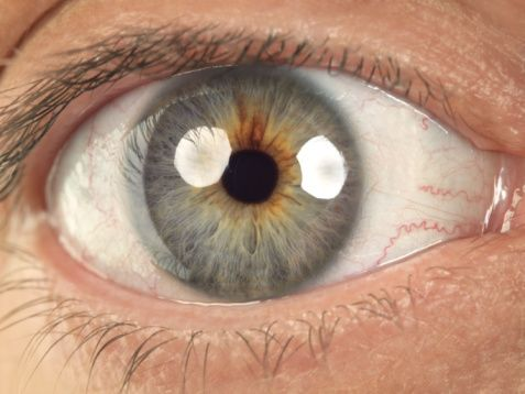 2. Devam eden  ağrı  veya gözde veya çevresinde rahatsızlık hissi.  Sağlıklı bir göz ağrı  yapmaz.  Hepimizde  vücudumuzun  orasında burasında hafif ve gelip geçici ağrılarımız olur.  Göz  de  buna dahildir, belki yorulduğumuz zaman. Ancak  sürekli  ağrı  normal değildir. Özellikle göz kızarıksa veya diğer tehlike  sinyalleri de varsa.