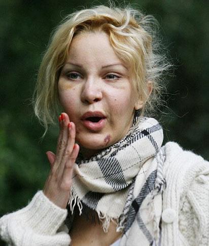 BİR DAHA ASLA YAPTIRMAM Yaptırdığı estetik operasyonlara tövbe eden ünlülerden biri de İngiliz TV yıldızı Alicia Douvall.