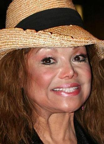 La Toya Jackson, defalarca operasyon geçirdi.