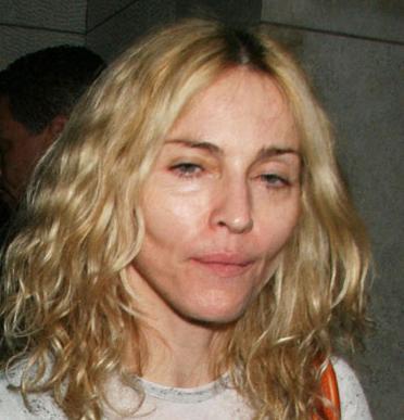 Madonna çökük yanaklarıyla günlerce magazin basınına konu oldu.