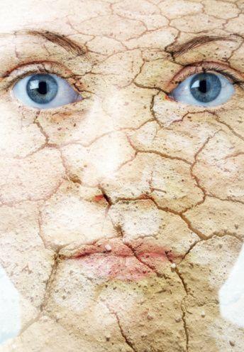 Cilt kuruluğu nasıl anlaşılır, belirtileri nelerdir?  Deri kuruluğunun ilk belirtisi, deride donuk gri beyaz bir renktir. Kuruluk arttıkça renk değişikliğine ek olarak ciltte gerilme hissi, pul pul soyulmalar, kepeklenme, deri yüzeyinde pürüzlenme, çatlaklar, yarıklanmalar oluşur. Kaşıntı, kuru derinin neden olduğu diğer bir şikayettir. Kuruluk tedavi edilmezse sonunda egzamalar oluşabilir.