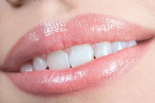 4) Üst dişlerde ileri itim,  5) Alt çene ileriliği (özellikle bademcik ve geniz etiyle ilgilidir),  6) Bozuk ağız hijyeni ve özellikle ön bölgede diş eti sorunları.
