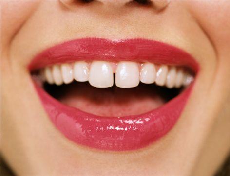 Dil normalde damak kubbesinde durması gerekirken tıkanıklık durumunda alt dişlerin arkasına doğru iner, bu durum uzun süre devam ettiğinde damak gelişimi normalden geri kalır ve olması gereken genişliğe erişemez.