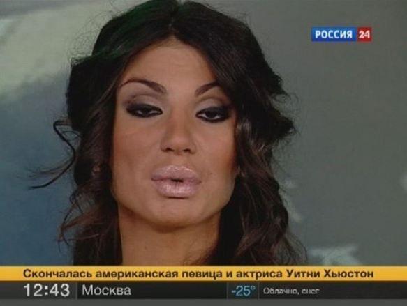 Rusya'da özellikle genç kızların yaptırdığı silikon dudak modası ülkede hızla yayılmaya başladı. Son olarak Rusya 24 isimli TV kanalının spikeri de silikon taktırınca televizyonlarını açanlar bu görüntü ile karşı karşıya kaldı.