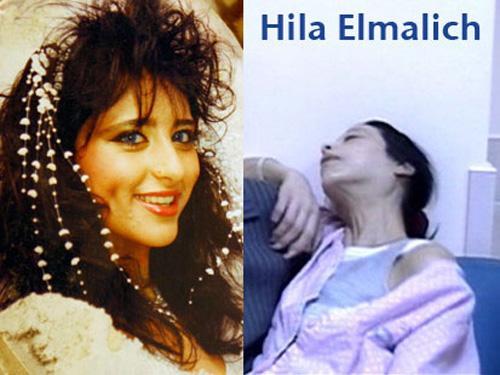 HİLA ELMALİCH 'Bıfır beden tutkusu' İsrailli mankeni ölümü götürdü. Aşırı zayıflıktan kaynaklanan anoreksiya hastalığıyla mücadele eden manken Hila Elmalich'ın hayatını kaybetti.