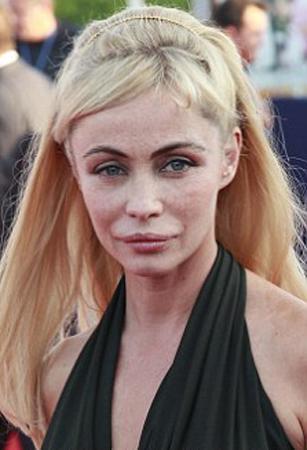 Özellikle 1980'li yıllarda dünyanan en güzel kadını ünvanını taşıyordu. Ama sonra ardı ardına geçirdiği estetik operasyonlar yüzünden geriye eski güzelliğinden hiçbir şey kalmadı.