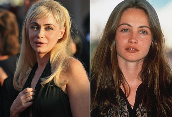 """Dolgun dudaklarıyla tanınan Fransız yıldız Emmanuelle Beart """"felaket"""" diye tanımladığı estetik operasyonlara karşı kampanya başlattı."""
