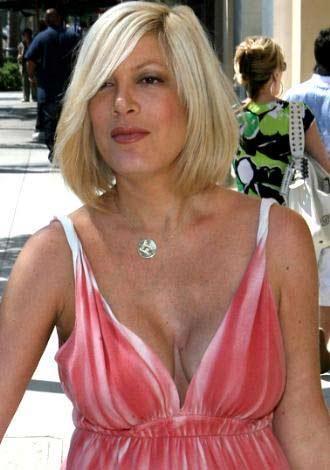 Oyuncu Tori Spelling, göğüslerini büyüttü. Ama bir hata oldu ve sol göğsünün üzerinde korkunç bir çökme meydana geldi.