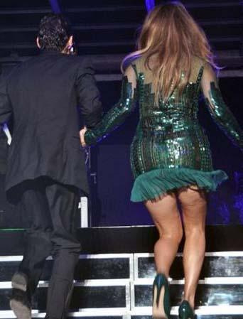 Eski kocası Marc Anthony ile birlikte verdiği bir konserde giydiği mini elbise de Lopez'in bu kusurunu gözler önüne sermişti.