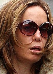2006 yılında da aynı durumla yüzyüze kalan Tara Palmer Tomkinson, burnunu yaptırmak için bıçak altına yattı ve bu iş için 6 bin Sterlin para ödedi.