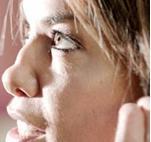 Tara Palmer Tomkinson, daha sonra yine kokain alışkanlığı yüzünden burnunun sağ tarafı düşmüş biçimde görüntülendi.
