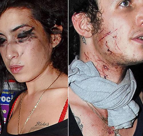 Bir kaç yıl önce o dönemde evli olduğu Blake Fielder Civil ile otel odasında kokain çekip birbirlerini hırpalayan çiftin olaylı gecesi karakolda bitmişti.