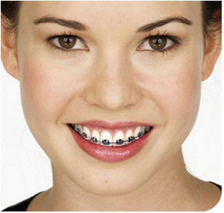 Ortodontik tedavi çocukken yapılır. – Yanlış  Ortodontik tedavinin yaşı yoktur, çapraşık dişlerin tedavisi her yaşta yapılabilir.   Dişlerin ön yüzü yada arka yüzüne yerleştirilen ve görünmeyen tel sistemleri ile daimi dişler ağızda çıktıktan sonra istenilen yaşta başlanabilir.