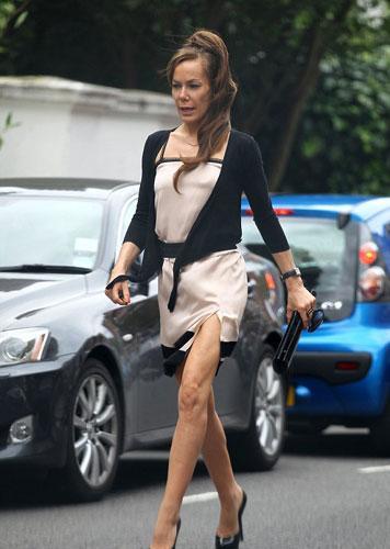 Daha önce kokain alışkanlığı yüzünden eriyen burun kemiğiyle gündeme gelen İngiliz sosyelit Tara Palmer Tomkinson bu kez de sokakta şekilden şekle girerek dikkat çekti.